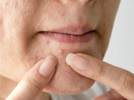 how to remove pimple marks on face naturally